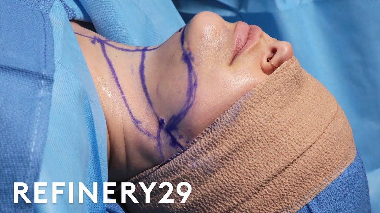 Download Double Chin Removal Surgery   Macro Beauty   Refinery29