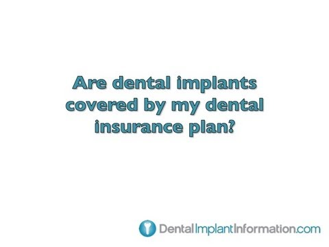 are-dental-implants-covered-by-my-dental-insurance-plan?