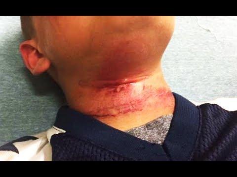 White Teens Lynch Biracial Eight-Year-Old Boy