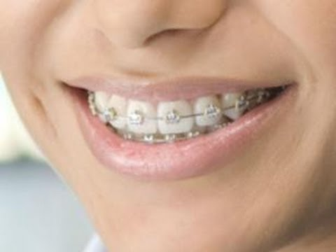 Fake braces black market is deadly for teens youtube fake braces black market is deadly for teens solutioingenieria Images