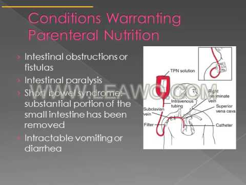 Chapter15 Enteral Parenteral Nutrition