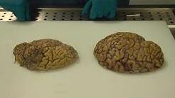 Alzheimer's brain Vs  Normal Brain!
