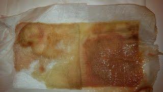 Hidradenitis Suppurativa leakage #2 Cyst Boils Pus draining thumbnail