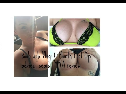 Boob Job Vlog 4: 6 Months Post Op, Mastopexy, Scarring, Surg