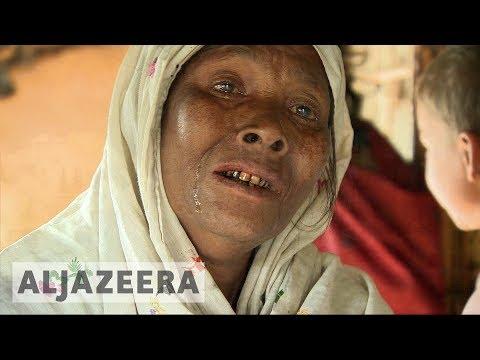 Women, children trafficking rife in Rohingya camps