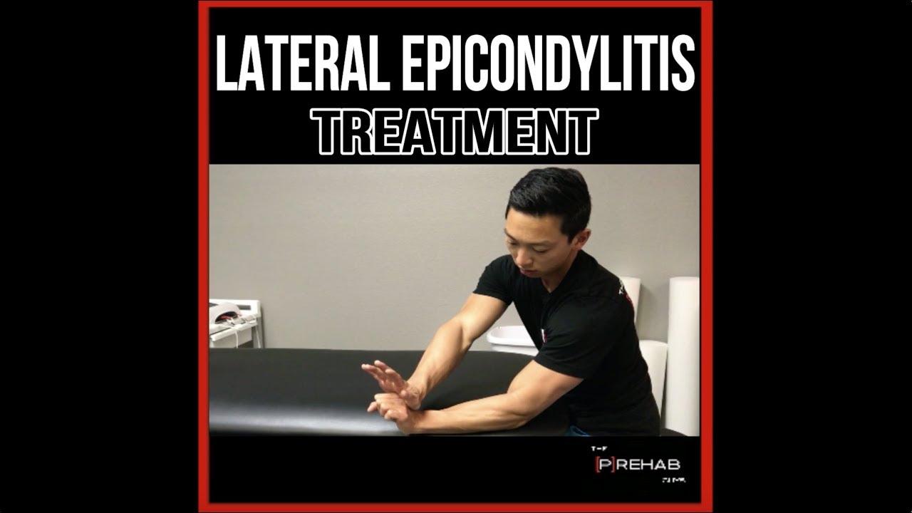 ízületi epicondylitis hogyan kell kezelni)