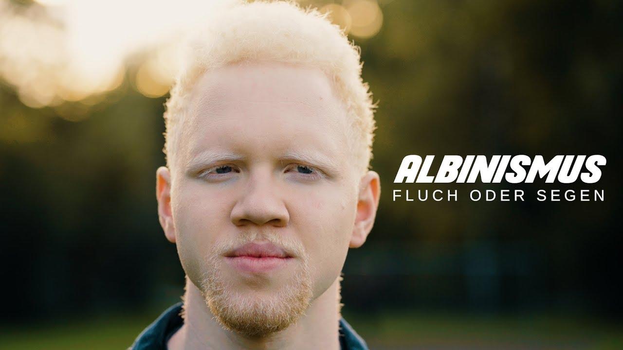 So lebt Deutschland   Folge 20   Ein Leben mit Albinismus