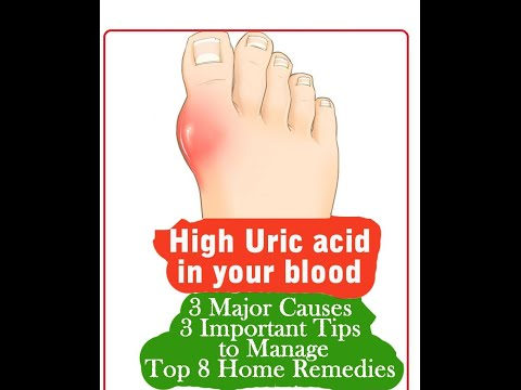 gout in ankle home remedies herbal supplements to reduce uric acid foods you can eat with high uric acid