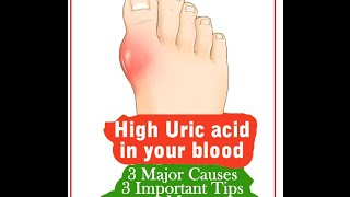 black cherry juice gout treatment can you get gout in your hip joints how to cure uric acid kidney stones