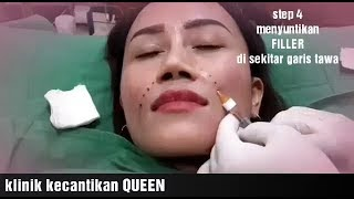 Filler Garis Tawa by Klinik Kecantikan Queen Sunter