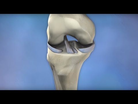 ACL Injury Prevention Mayo Clinic