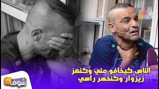 القصة القنبلة..مأساة سجين سابق ضارب لحمو ومخسر وجهو: ''الناس كيخافو مني وكنهز زيزوار وكنخسر راسي''
