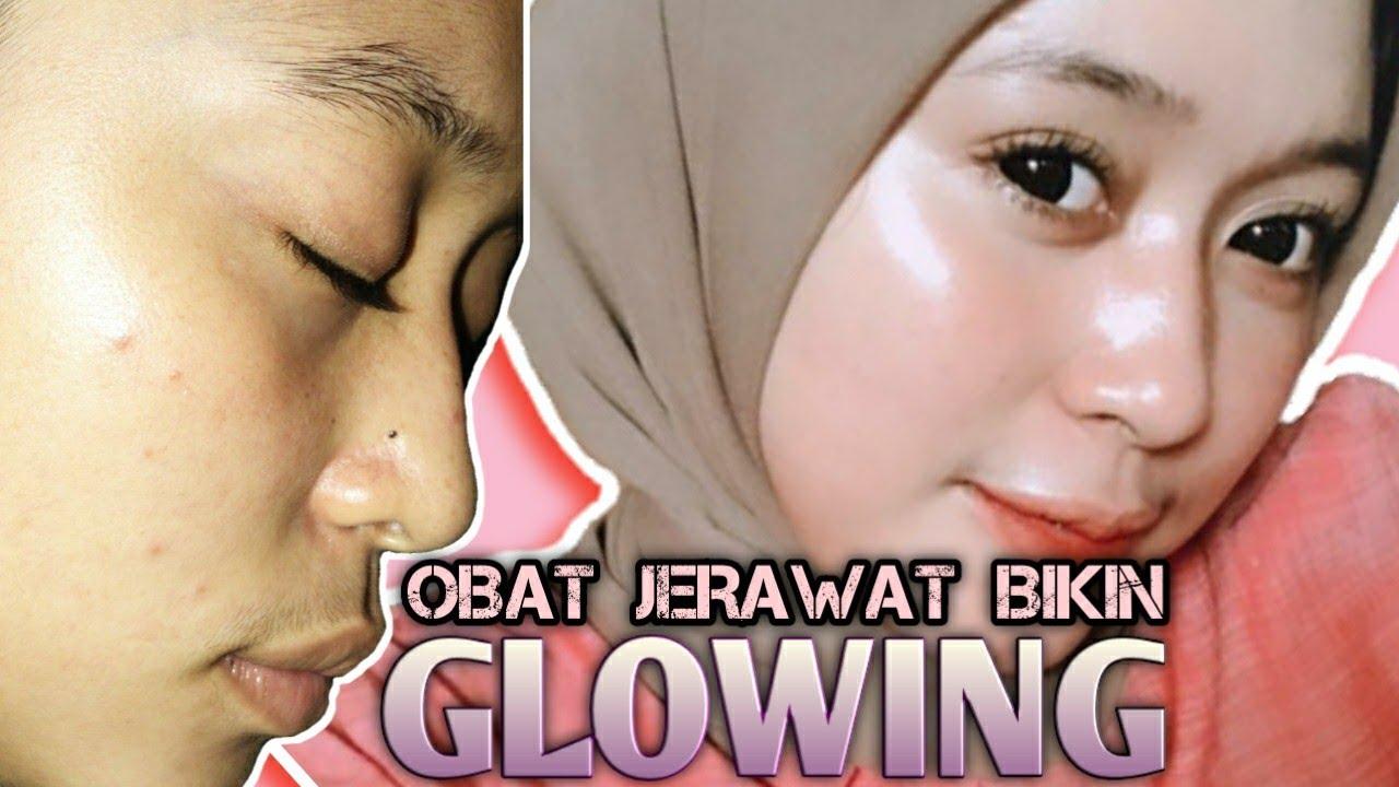 Review Obat Jerawat Ampuh DI JAMIN wajah MULUS DAN GLOWING ...