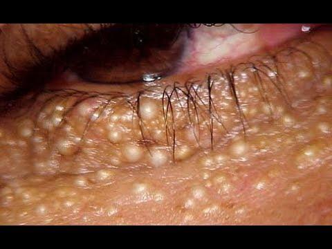 ★ 4 метода удаления МИЛИУМОВ. Гранатовый порошок и лимонный сок удалят белые бугорки на лице