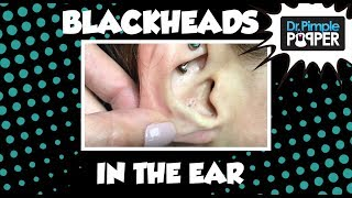 Blackheads in the Ear of Ms Rainbow Steatocystoma!