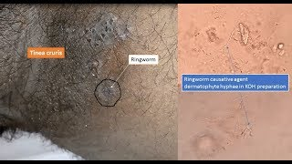 Ringworm and its causative agent dermatophyte  under microscope