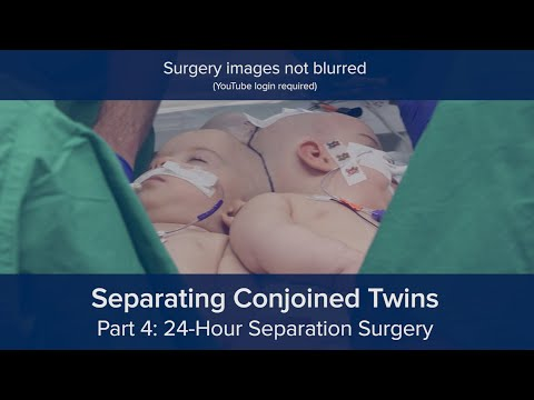 Separating Conjoined Twins Part 4: 24-Hour Separation Surgery