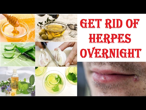 How To Cure Herpes Overnight | Natural Home Remedies For Removal Of Herpes