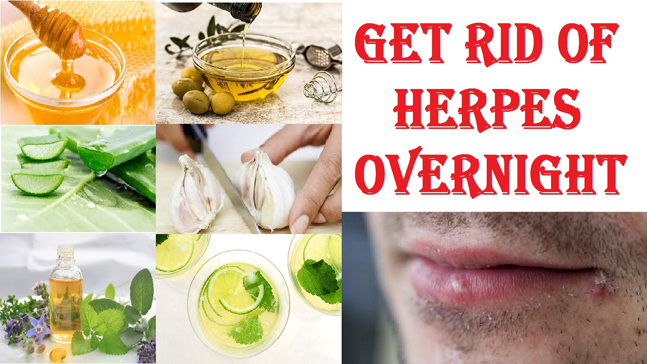 Is There Any Natural Treatment For Herpes