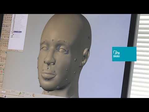 Forensic Imaging at NCMEC: Skull Reconstruction