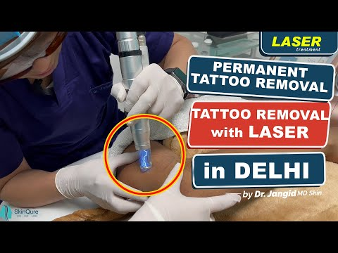 All about Tattoo removal in Delhi at SkinQure | Permanent Tattoo Removal (in Hindi)