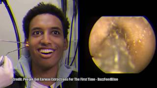 Thickest Ear Wax!  Ear Wax Removal!  10 Million Views - Most Popular