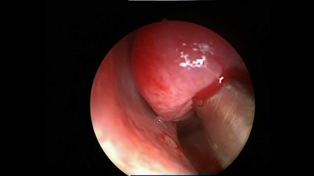Cyst in the nose. Removal of a cyst in the nose 21