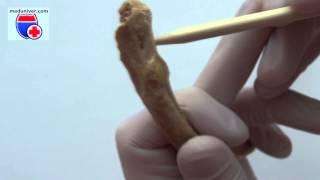 Costae. Нормальная анатомия ребер - meduniver.com