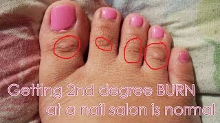 [vlog] Getting 2nd Degree Burn At A Nail Salon Is Normal