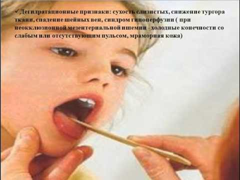 ишемическая болезнь кишечника