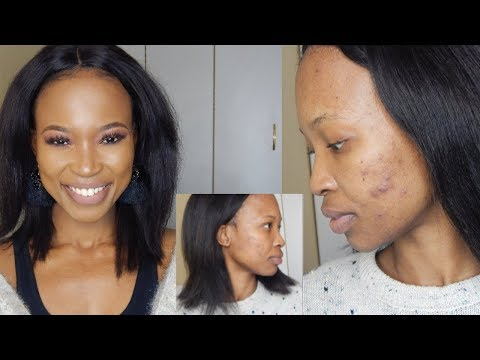 how-to-get-rid-of-hormonal-acne-and-acne-scars-|-yasmin-pill