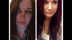 hqdefault - Obsessive Skin Picking Acne