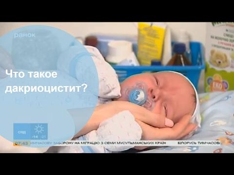 Мама-блог. Выпуск 6 - Дакриоцистит или закисание глаз у младенцев