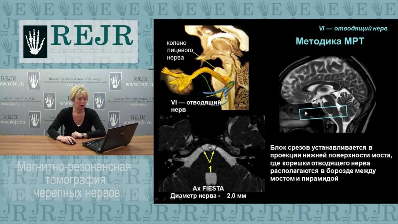 МРТ черепных нервов