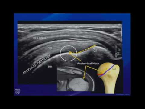 Ultrasound of the Shoulder
