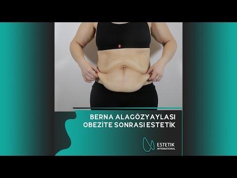 Estetik International - Berna Alagözyaylası / Obezite Sonrası Estetik