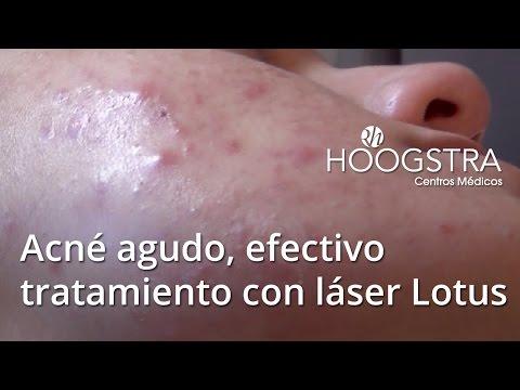 Acné agudo, efectivo tratamiento con láser Lotus (15038)