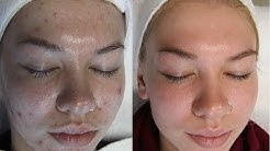 hqdefault - Face Reality Acne Skin Care