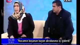 BANA YIRMIK ATMASIN