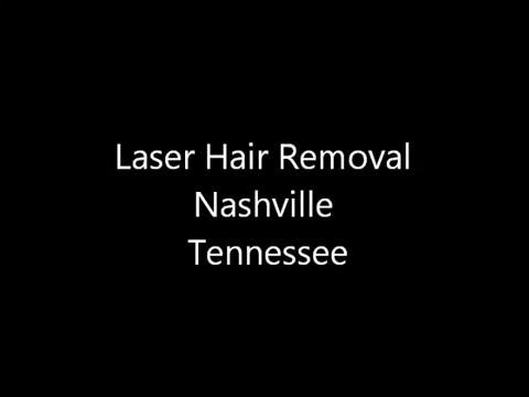 Laser Hair Removal Nashville Tennessee