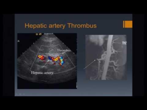 Imaging of Liver Transplants