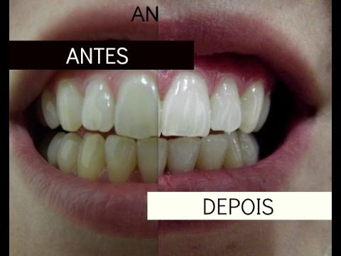 oral- to oral paste