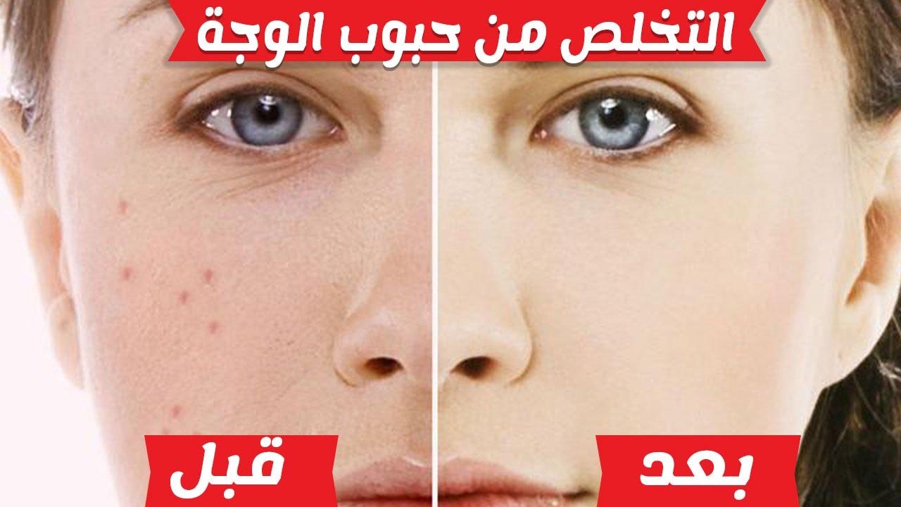 5 طرق طبيعية للتخلص من حبوب الوجه واثارها Youtube
