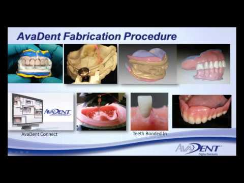 AvaDent Digital Dentures   Join the Removable Revolution