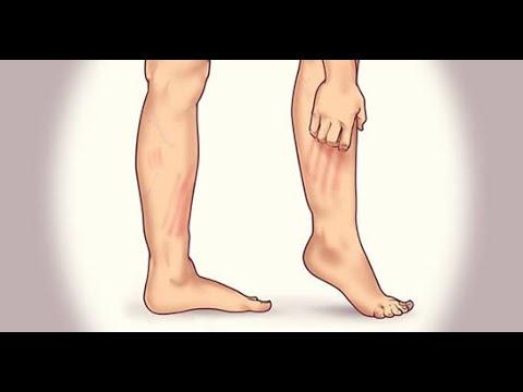 ce să faci de la varicoză pe picioare