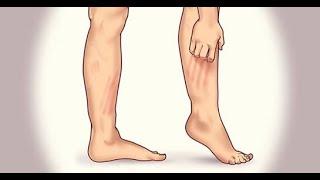 Tratament cu eczeme varicoase cu remedii populare pentru picioare