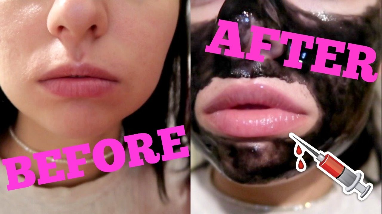 TOO FACED LIP INJECTION EXTREME REVIEW | vlog