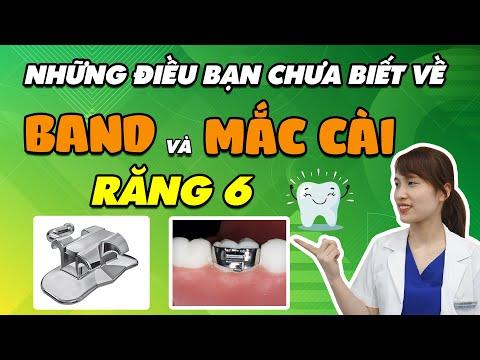 cách vệ sinh răng niềng tại Kemtrinam.vn