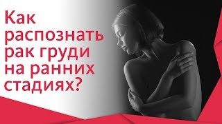 Рак молочной железы симптомы. 🔬 Симптомы и диагностика рака молочной железы на ранних стадиях. 12+