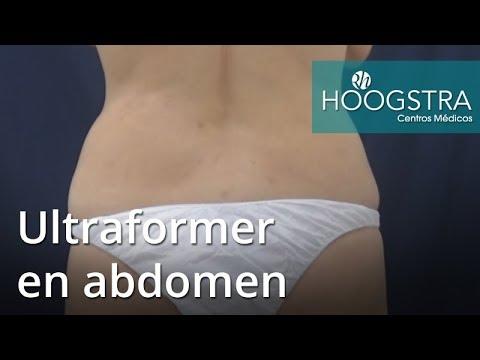 Ultraformer en abdomen (18065)